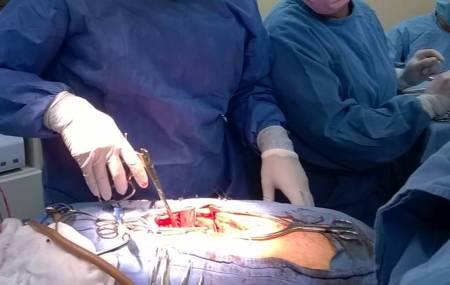 Operación exitosa de tumor Ependimoma en el IMSS Hidalgo