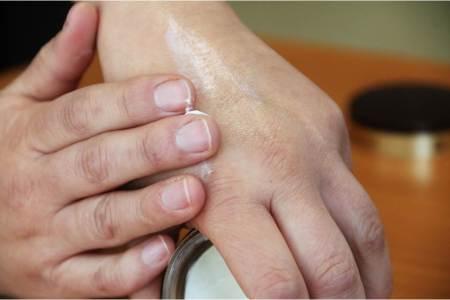 La SSH emite recomendaciones para evitar enfermedades de la piel durante la temprada de calor2