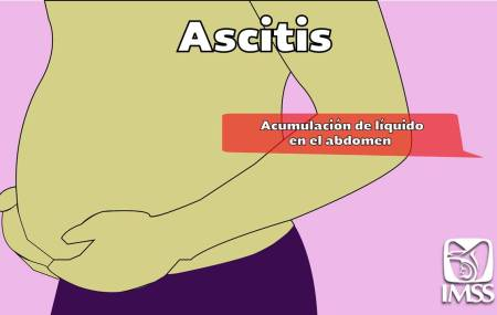 IMSS informa consumo excesivo de alcohol puede provocar ascitis