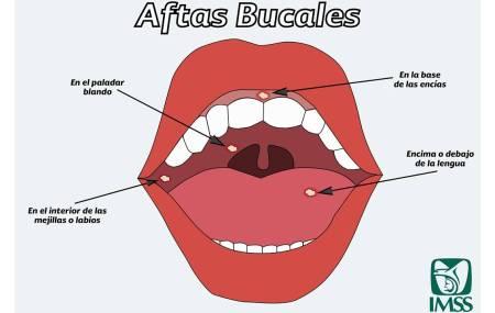 Las aftas bucales son causadas por una infección viral, estrés, alergias o falta de vitaminas.jpg