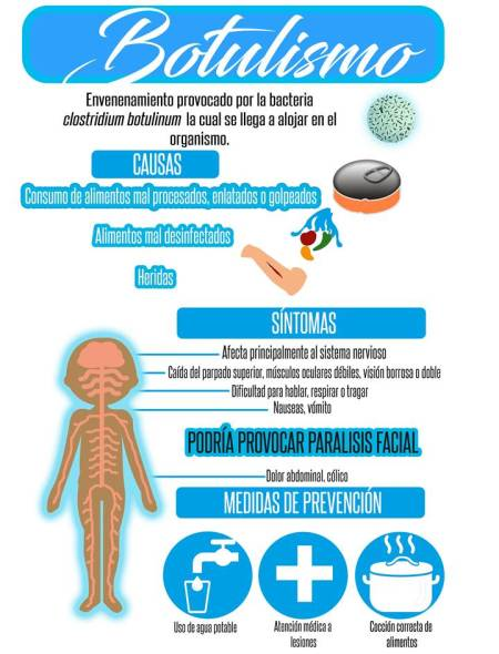 botulismo es el envenenamiento por alimentos mal procesados o enlatados.jpg