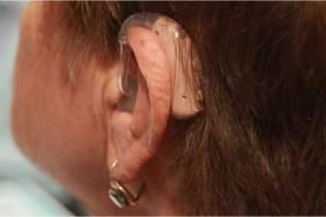 Gestión de DIF Municipal, beneficia a 71 personas con auxiliares auditivos en Mineral de la Reforma