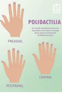 IMSS informa de polidactilia, crecimento de dedos extra