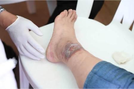 CESAGI invita a curso Taller de Evaluación Vascular no invasiva de extremidad inferior en pacientes con heridas crónicas